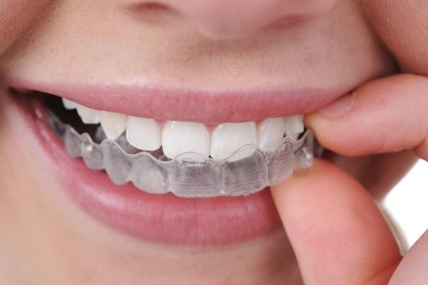 จัดฟันใส invisalign